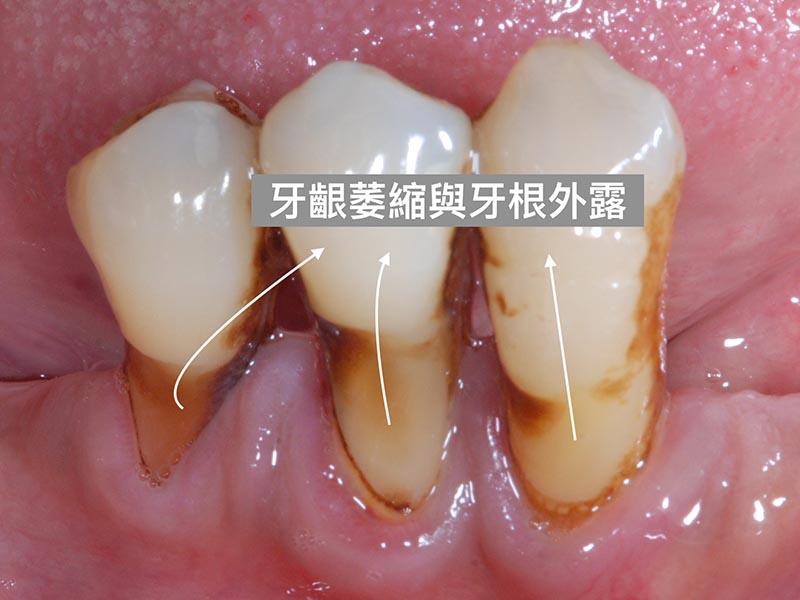 刷牙方式不當-牙齦萎縮-牙根外露-牙根敏感