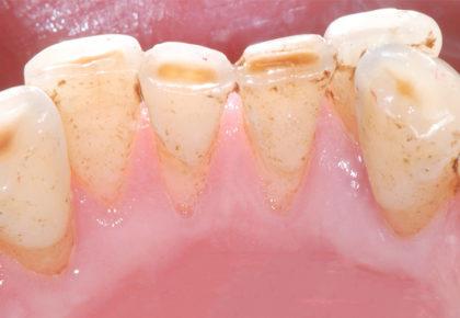牙周病患者如何正確刷牙洗牙,5大牙齒保健工具挑選tips