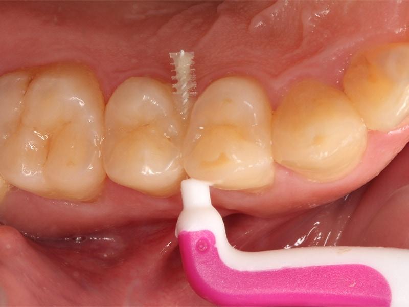 洗牙-刷牙-牙齒保健-牙刷-漱口水-牙間刷使用方式,從牙縫內靠著前後牙輕刷3-5下