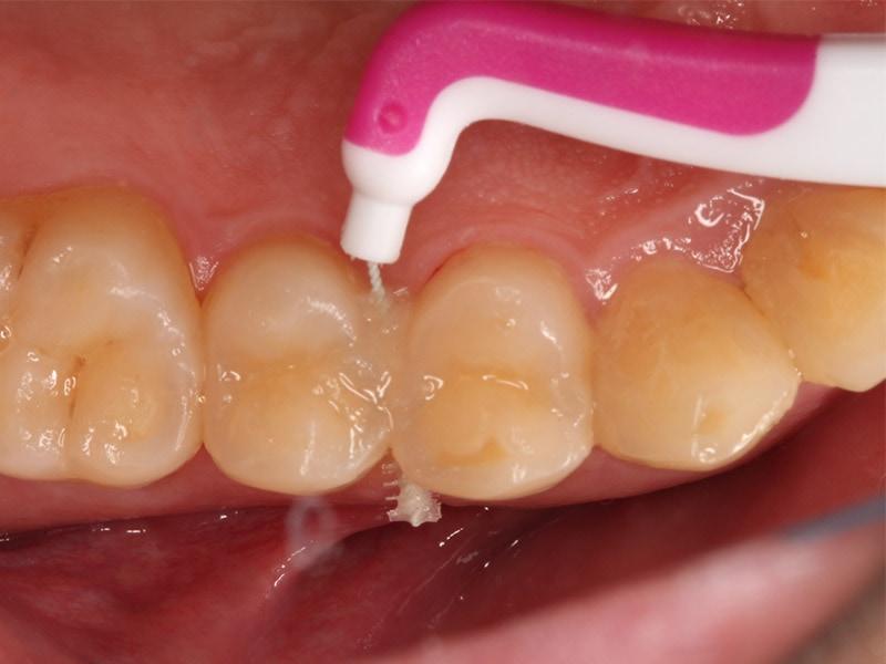洗牙-刷牙-牙齒保健-牙刷-漱口水-牙間刷使用方式,從舌側往頰側清潔會更徹底