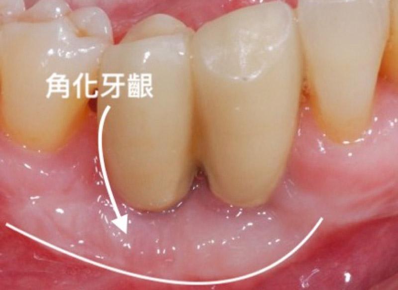 角化牙齦-位置-口腔示意圖