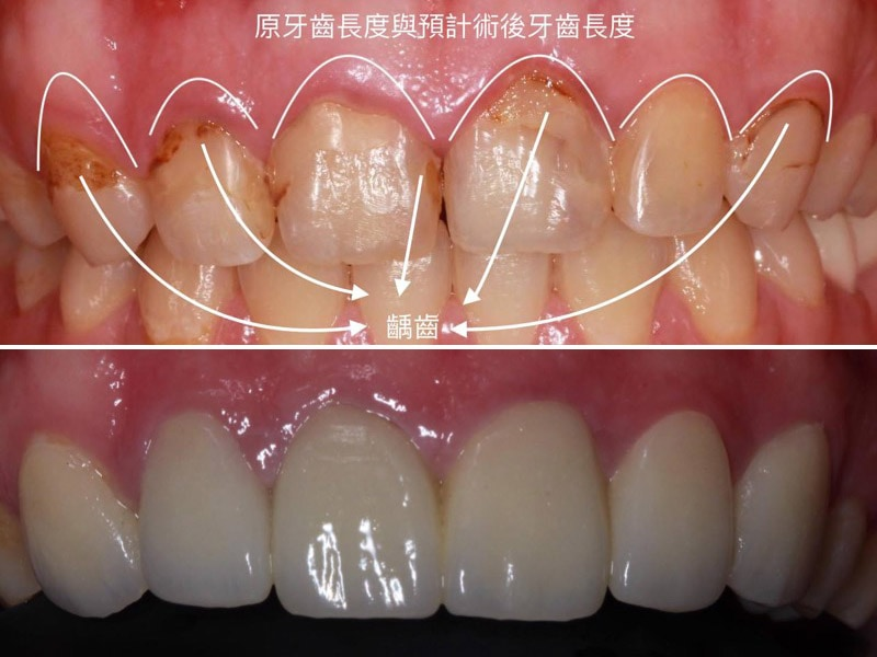 牙冠增長術-牙齦手術-術前術後比較圖-牙周整形手術