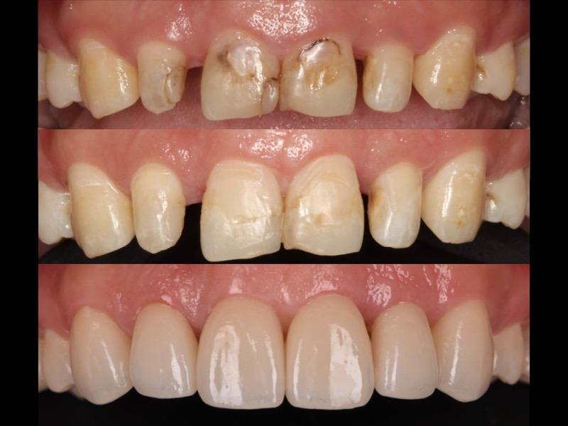 牙冠增長術-牙齦手術-全瓷貼片-修復牙縫大-牙周整形手術