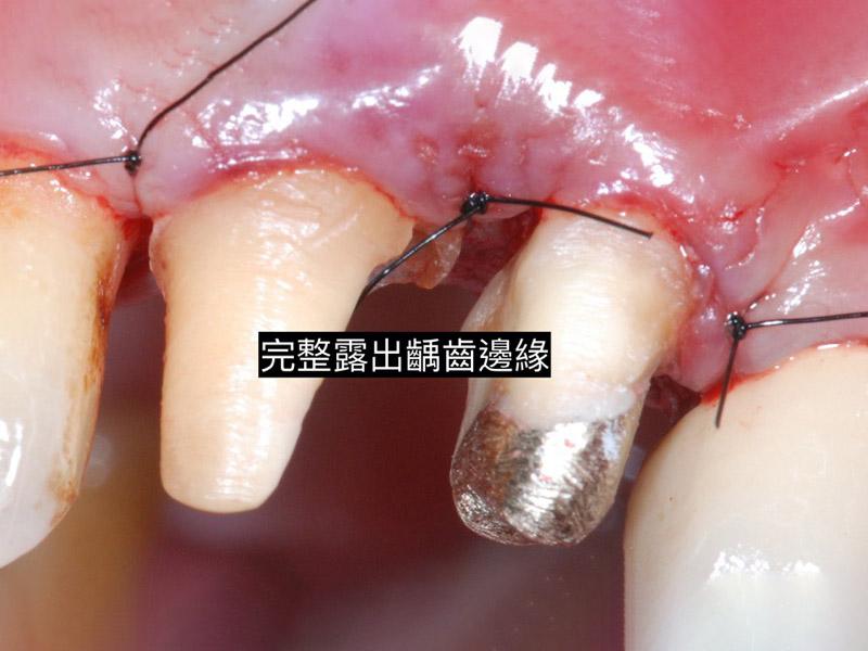 牙周病治療-牙周病手術-牙冠增長術-牙周專科醫師-桃園當代牙醫-葉立維醫師-牙冠增長術後,已完整露出齲齒邊緣