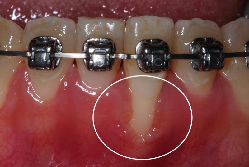牙根覆蓋術-術前-牙根外露-牙齦萎縮-角化牙齦不足