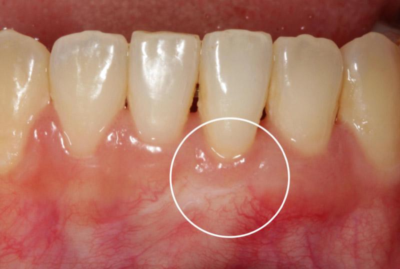 牙根覆蓋術-手術後-葉立維醫師-桃園