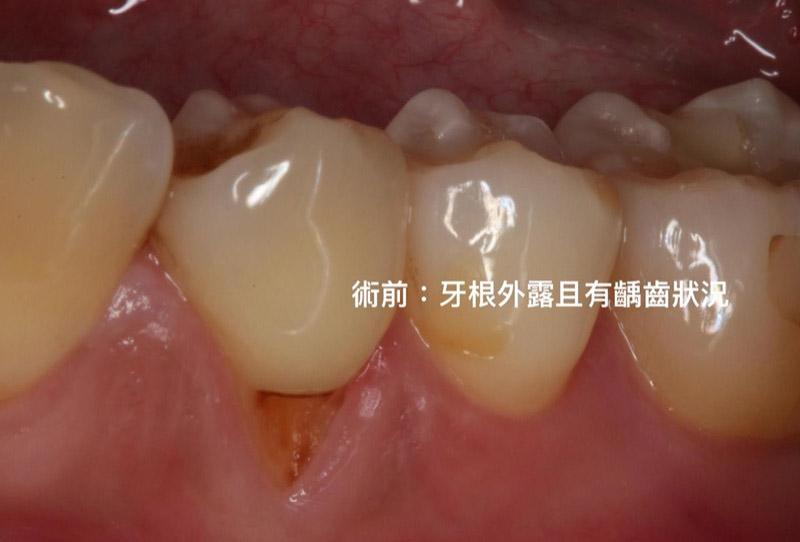 牙根覆蓋術-牙根外露-手術前-葉立維醫師-桃園