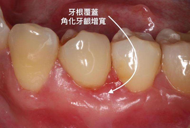 牙根覆蓋術-牙根外露-手術後-角化牙齦增寬-葉立維醫師-桃園