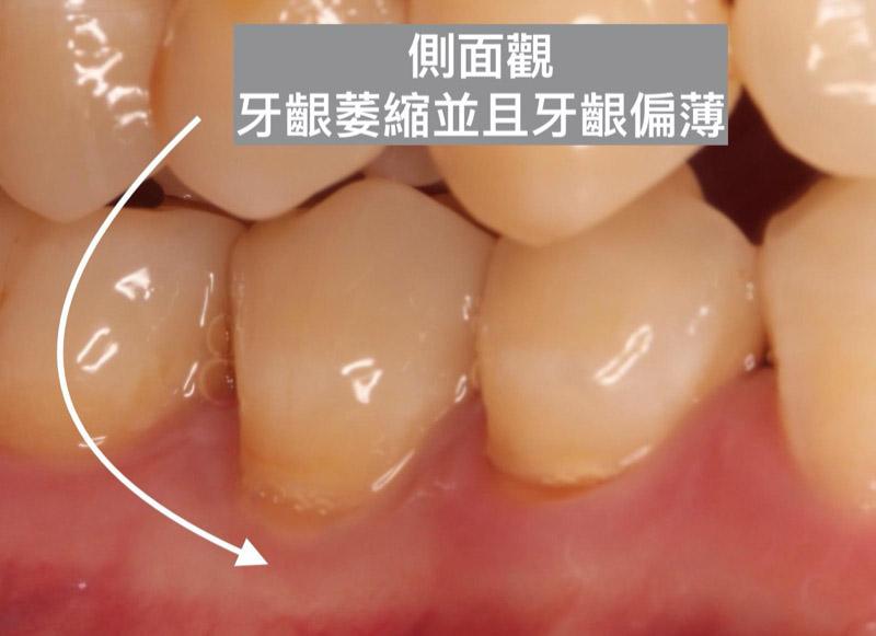 裂耗-牙齦萎縮-牙齦偏薄