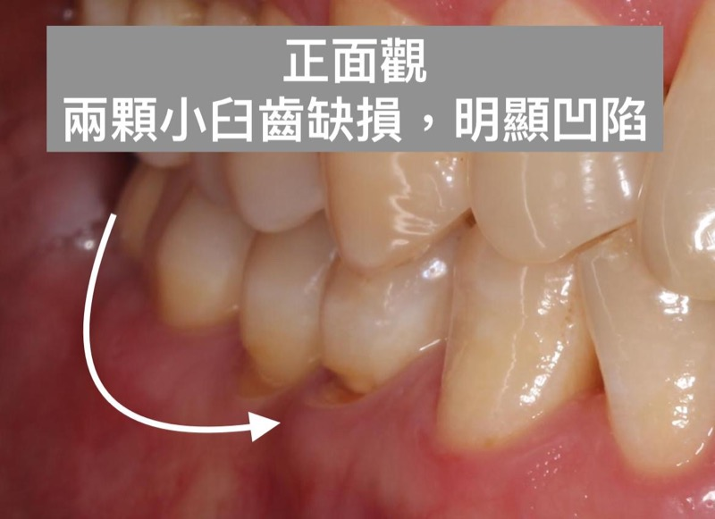 裂耗-牙齦凹槽-牙齒斷裂-磨牙