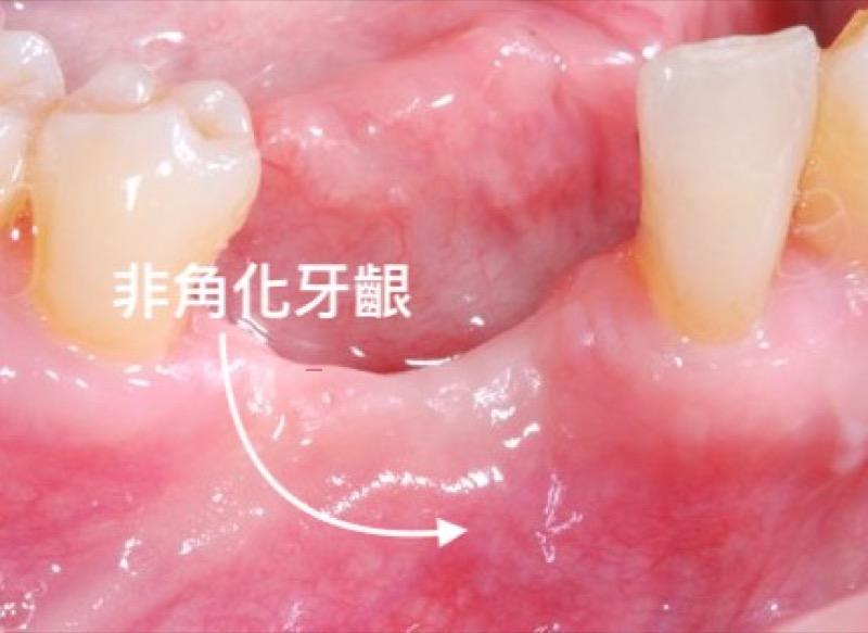 非角化牙齦-位置-口腔示意圖-葉立維醫師-桃園