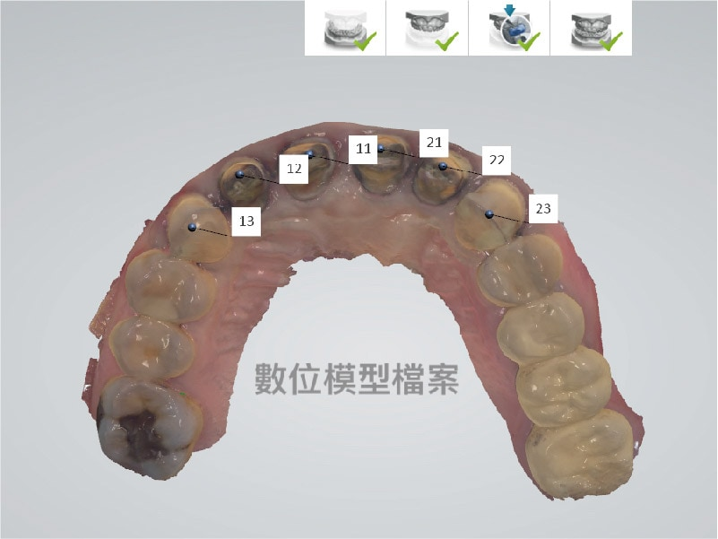 DSD數位微笑設計-上顎齒列數位虛擬模型