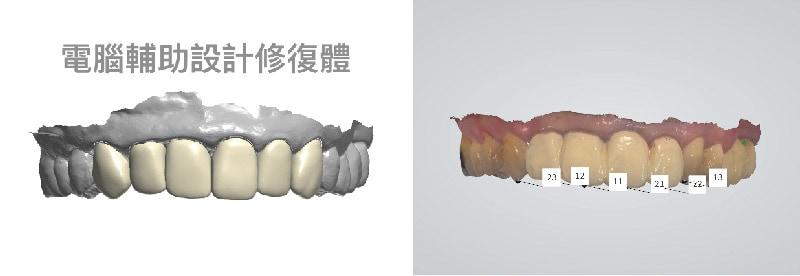 DSD數位微笑設計-電腦輔助設計模擬-前牙美觀區