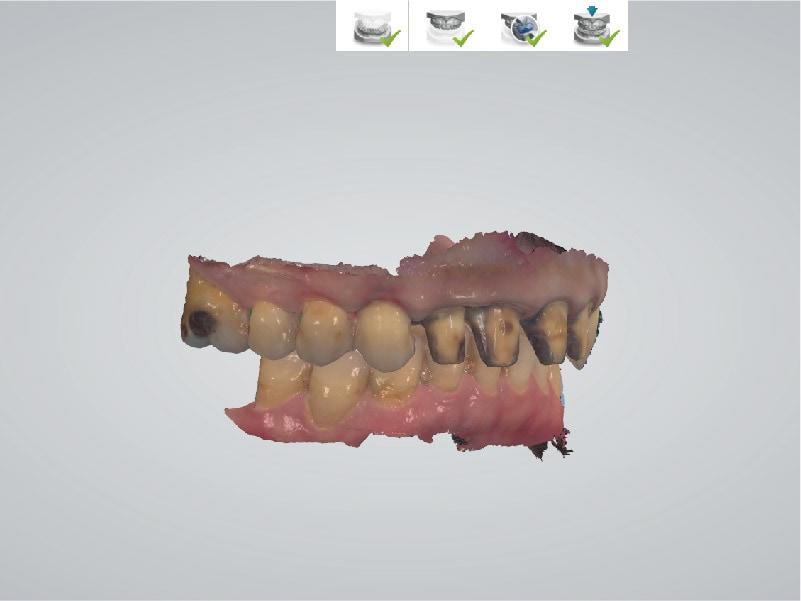 DSD數位微笑設計-右側咬合數位虛擬模型