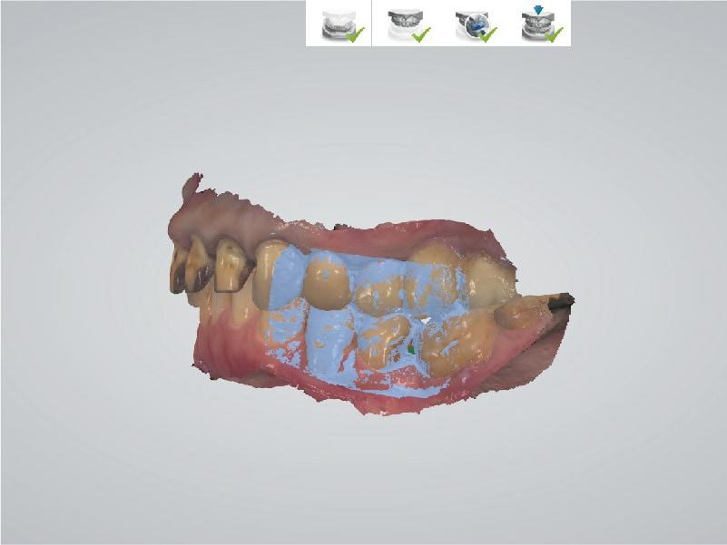 DSD數位微笑設計-左側咬合數位虛擬模型