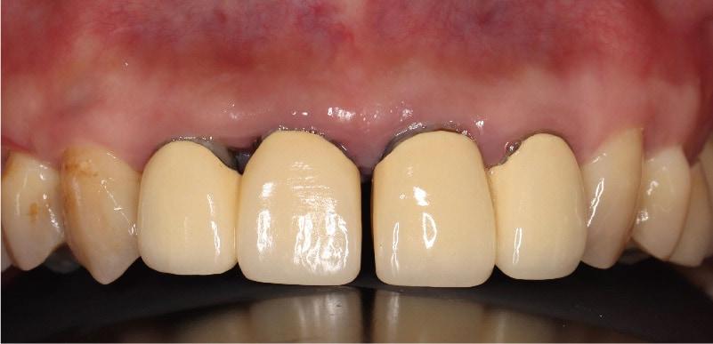 舊門牙假牙-位移-牙縫-暴牙-牙周病症狀-後遺症