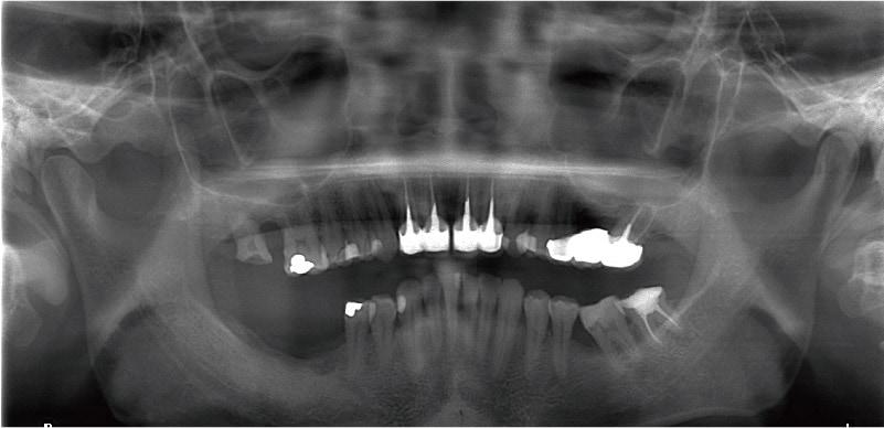 牙周病治療案例-環口式X光片-全口牙周病