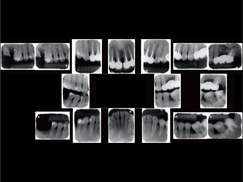 牙周病治療案例-全口X光片-嚴重牙周病