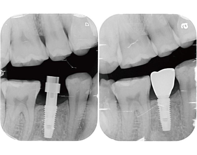 人工植牙假牙-安裝前後-X光照