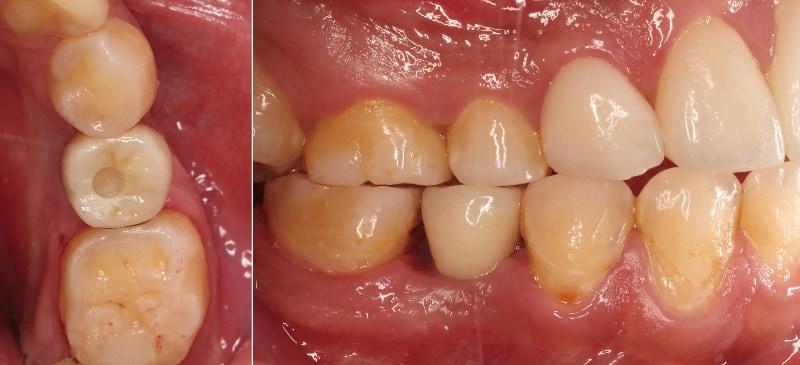 人工植牙假牙-安裝後-牙齒近照