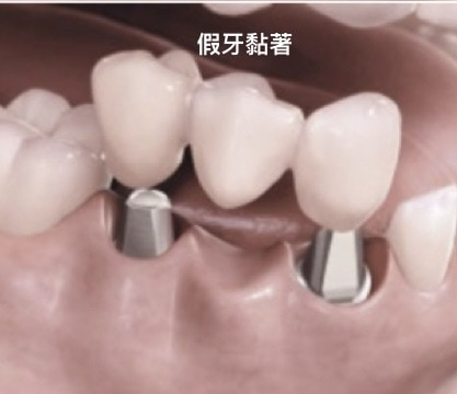 人工植牙-固定式植牙假分設計分類-黏著劑固位式-將假牙黏著在支台上