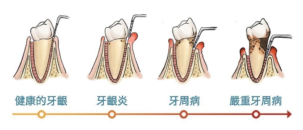 何謂牙周病-牙周病治療