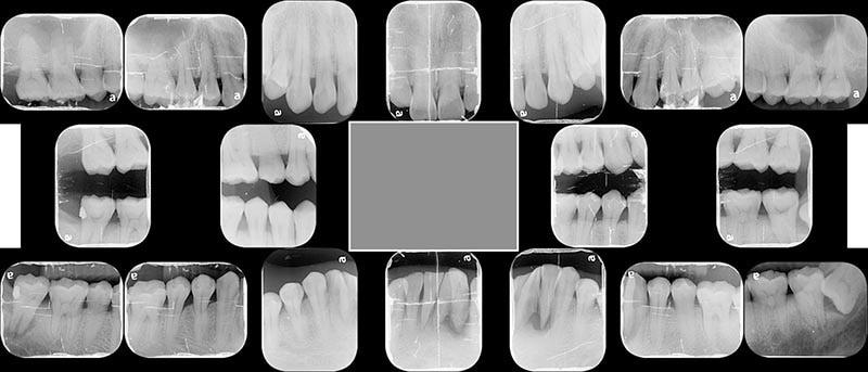 全口X光片-牙周病第一階段治療
