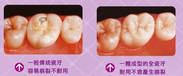 全瓷材質牙冠-全瓷冠-全鋯冠-一體成型耐用-少瓷裂