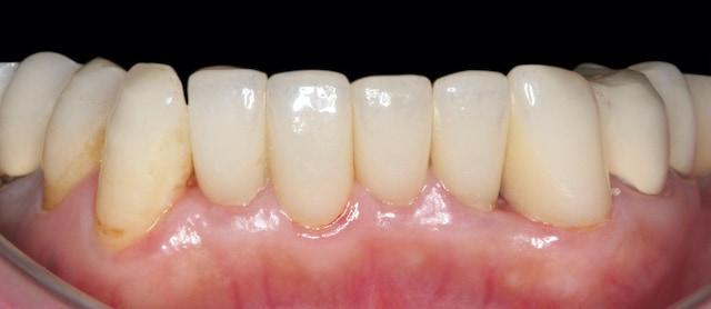 前牙下排治療後-陶瓷貼片-全瓷冠-自然齒色微矯正