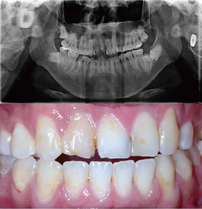 牙周病治療前-環口式X光片-口內檢查照