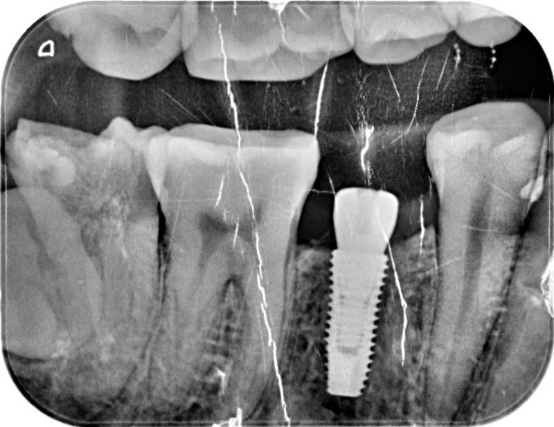 植牙手術後-X光照-植體穩定度良好