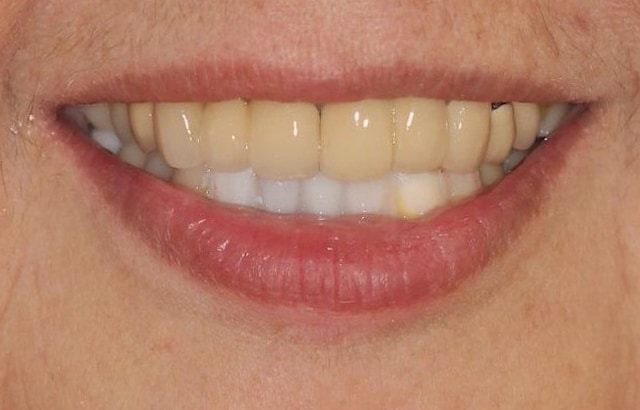 DSD數位微笑設計-治療過程中-先用臨時材料試戴模擬牙齒排列