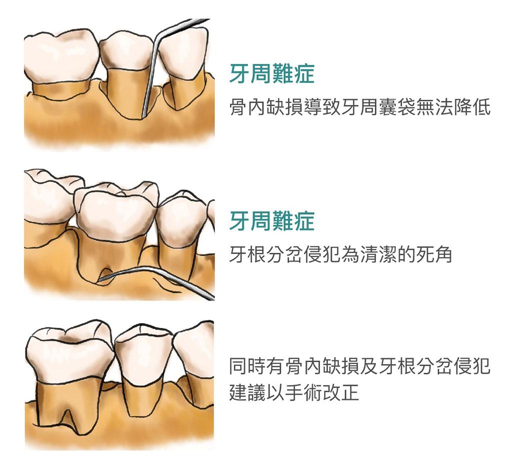 牙周手術治療目標,恢復牙周組織,改善牙周環境-牙周病治療