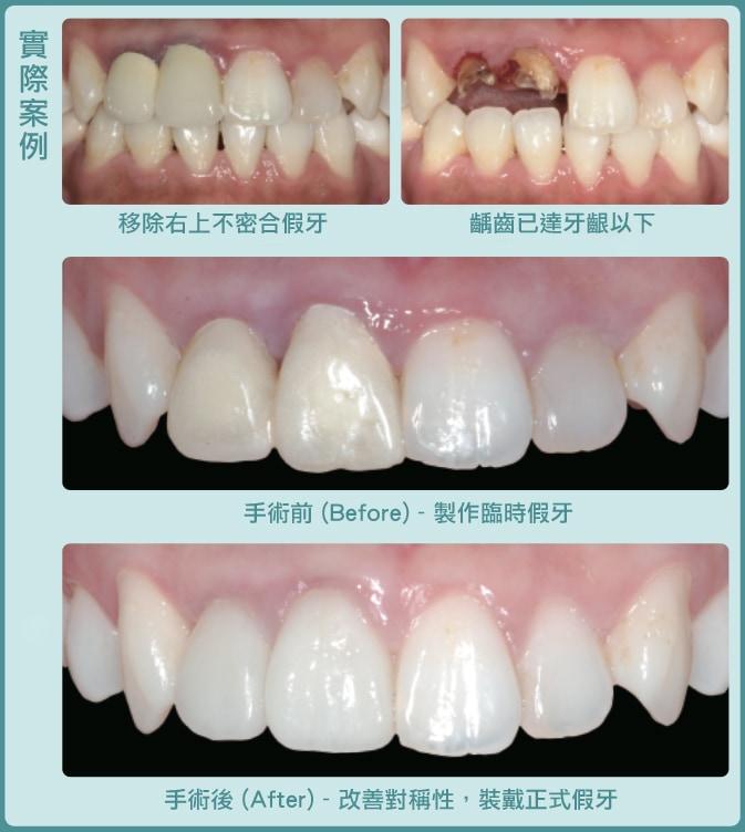 牙周整形手術-桃園牙醫推薦-牙冠增長術-術後裝戴正式假牙恢復美觀