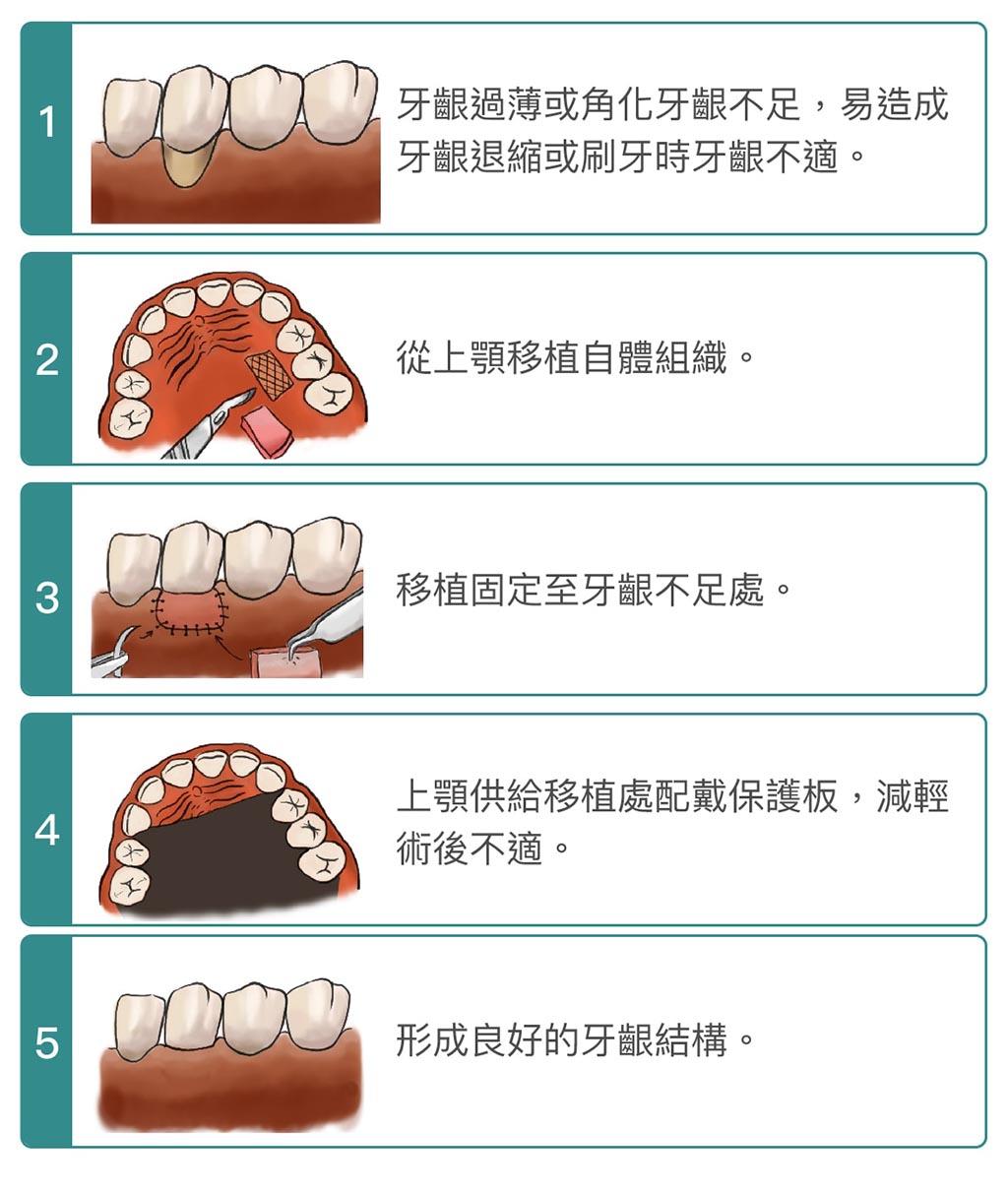 牙根覆蓋術-手術步驟-牙齦手術-葉立維醫師-桃園
