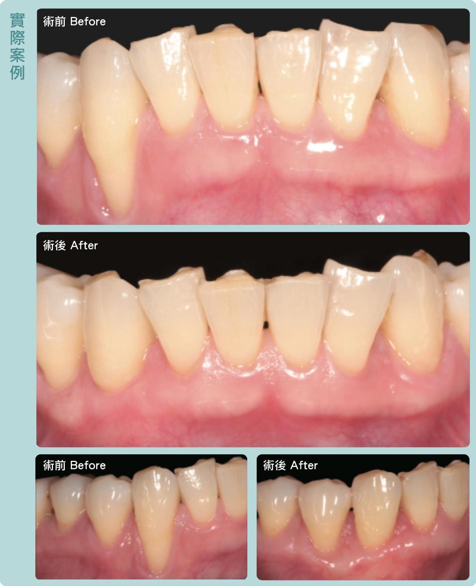 牙根覆蓋術-牙齦手術-術前術後比較-葉立維醫師-桃園