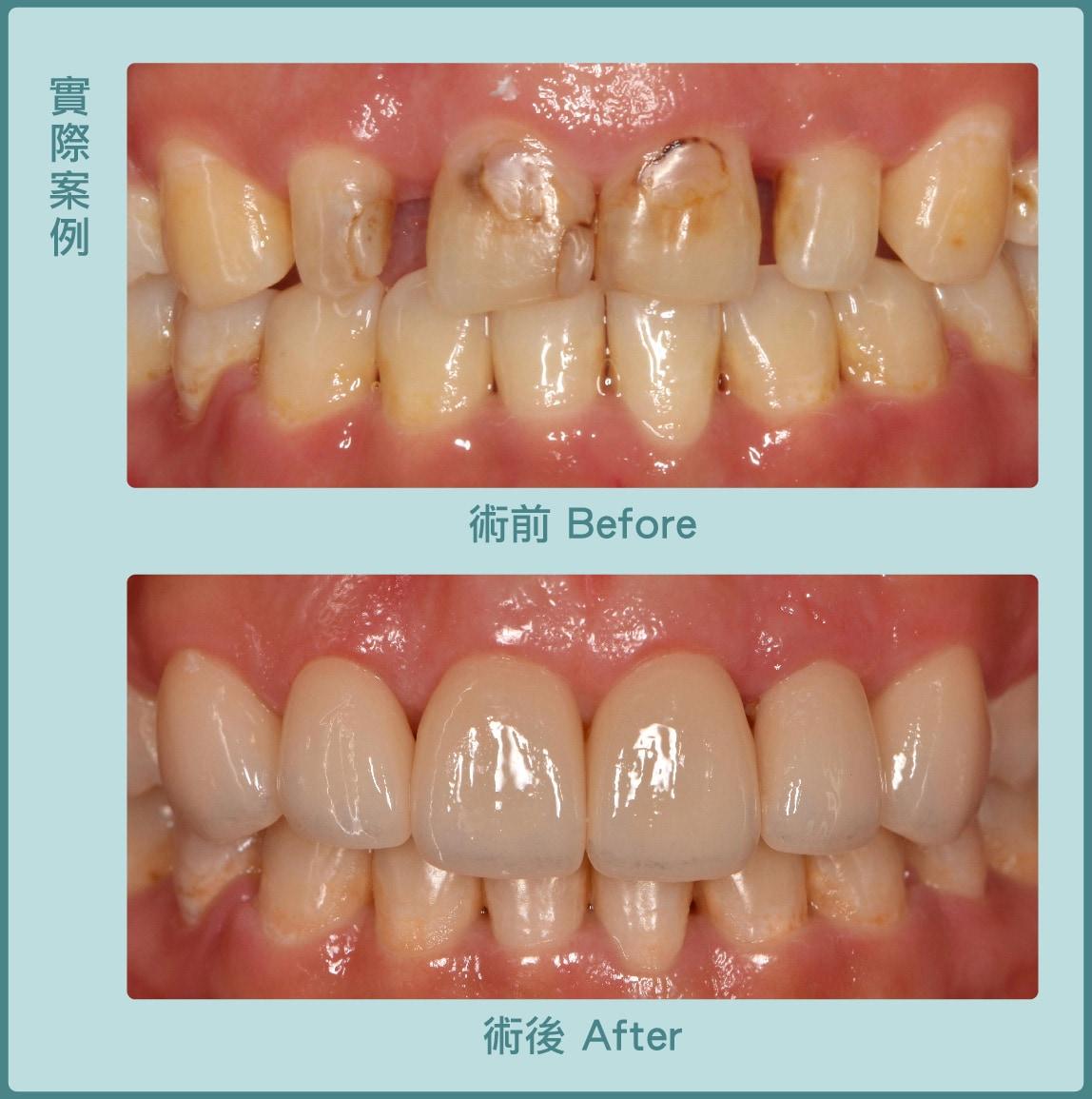 牙冠增長術-牙縫大-瓷牙貼片-術前術後比較-葉立維醫師-桃園