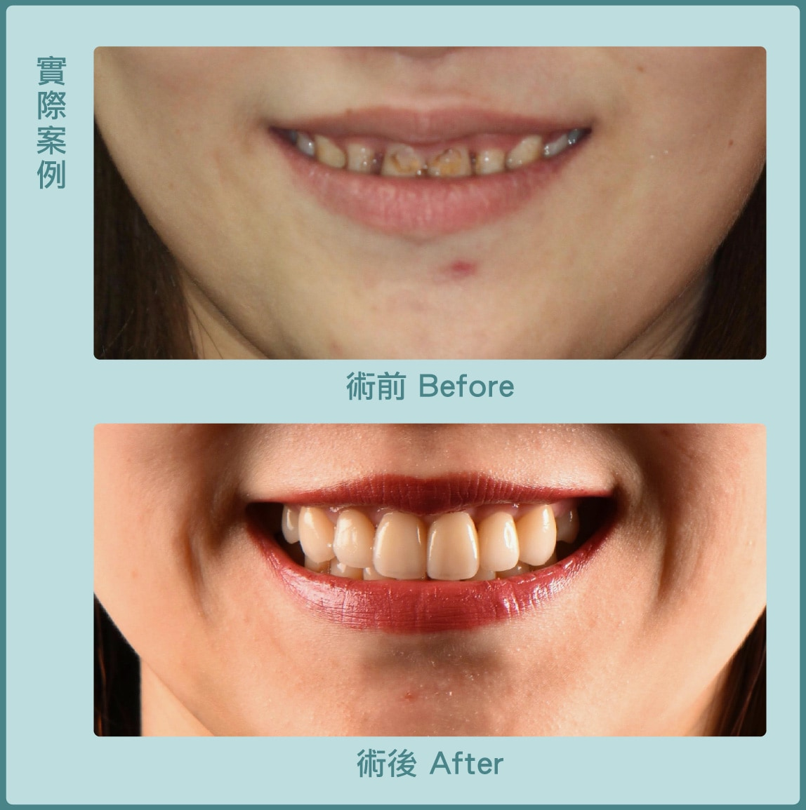 牙冠增長術-笑露牙齦-瓷牙貼片-術前術後比較-葉立維醫師-桃園