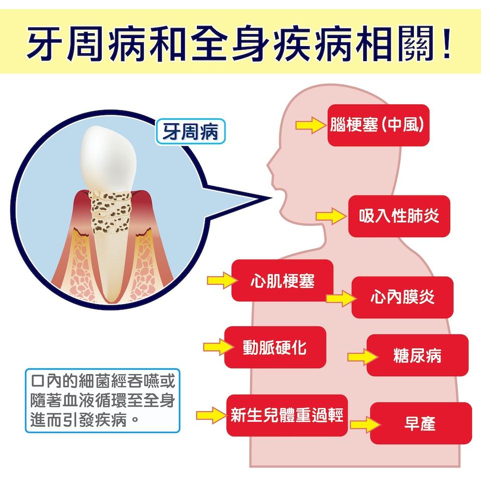牙周病莫輕忽,不及早治療恐影響全身健康!
