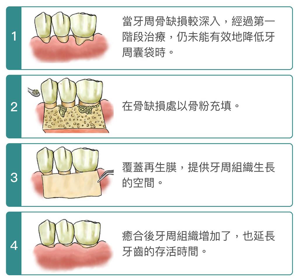 牙周病手術-牙周再生手術-手術步驟