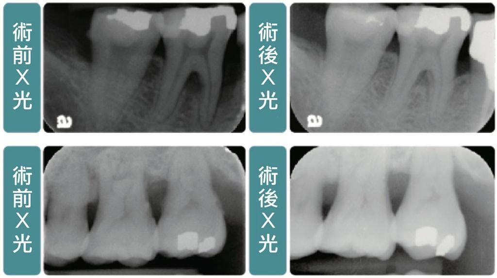 牙周病手術-牙周翻瓣手術-骨修整手術-手術前後X光比較