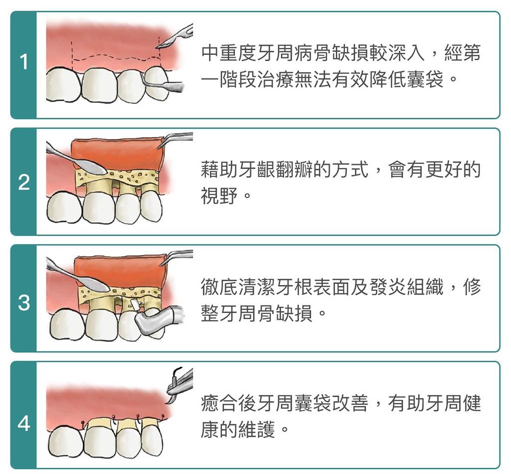 牙周病手術-牙周翻瓣手術-骨修整手術-手術步驟