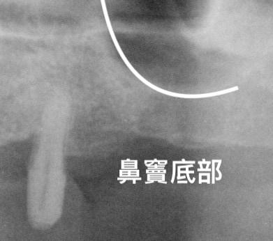 牙周病植牙-人工植牙前採植牙孔處鼻竇提高術-植牙前鼻竇底部