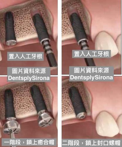 牙周病植牙-人工植牙-數位導航植牙-鎮靜植牙手術-人工植牙手術會依植體及補骨需求分為二種階段