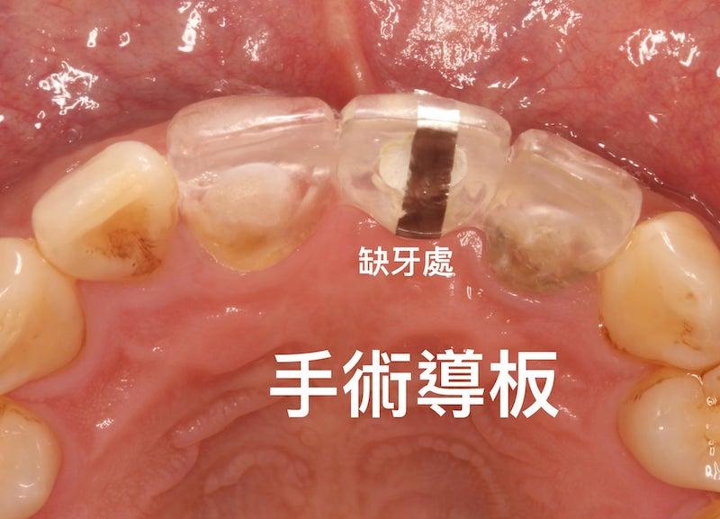 牙周病植牙-人工植牙-數位導航植牙-鎮靜植牙手術-傳統牙科植牙手術-採用傳統手術導板拍攝X光或斷層影像