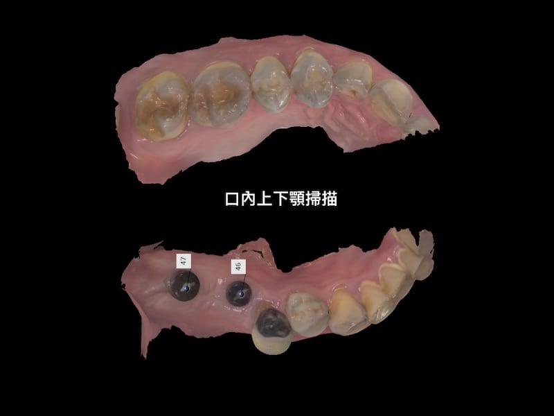 牙周病植牙-人工植牙-數位導航植牙-鎮靜植牙手術-數位化植牙案例-以數位掃描器取後上下顎齒列模型