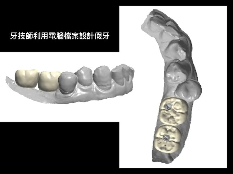 牙周病植牙-人工植牙-數位導航植牙-鎮靜植牙手術-數位化植牙案例-牙技師依數位模型製作植牙假牙