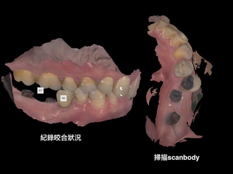 牙周病植牙-人工植牙-數位導航植牙-鎮靜植牙手術-數位化植牙案例-鎖入人工牙根後-再掃描相對位置