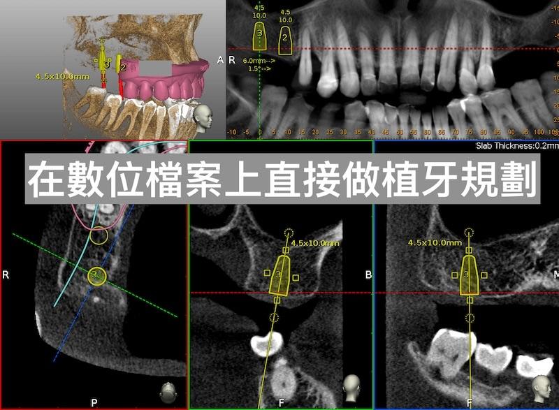 牙周病植牙-人工植牙-數位導航植牙-鎮靜植牙手術-數位牙醫科技-可以在數位檔案上直接做植牙規劃