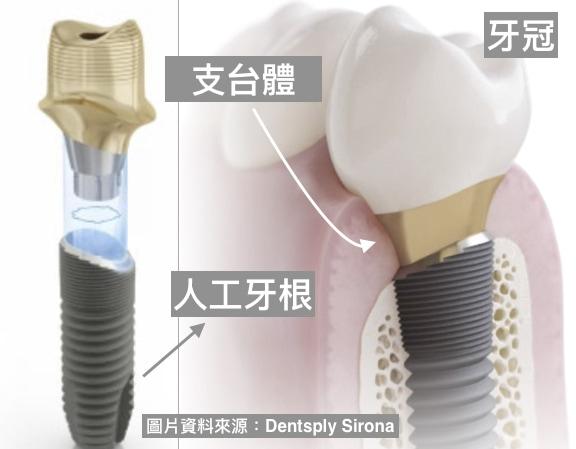 牙周病植牙-人工植牙-數位導航植牙-鎮靜植牙手術-植牙指將人工牙根植入齒槽骨-在上安裝假牙